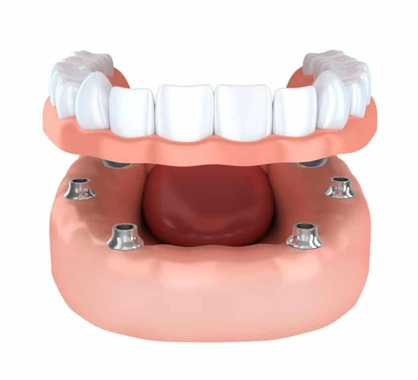 Dental Implant Rendering
