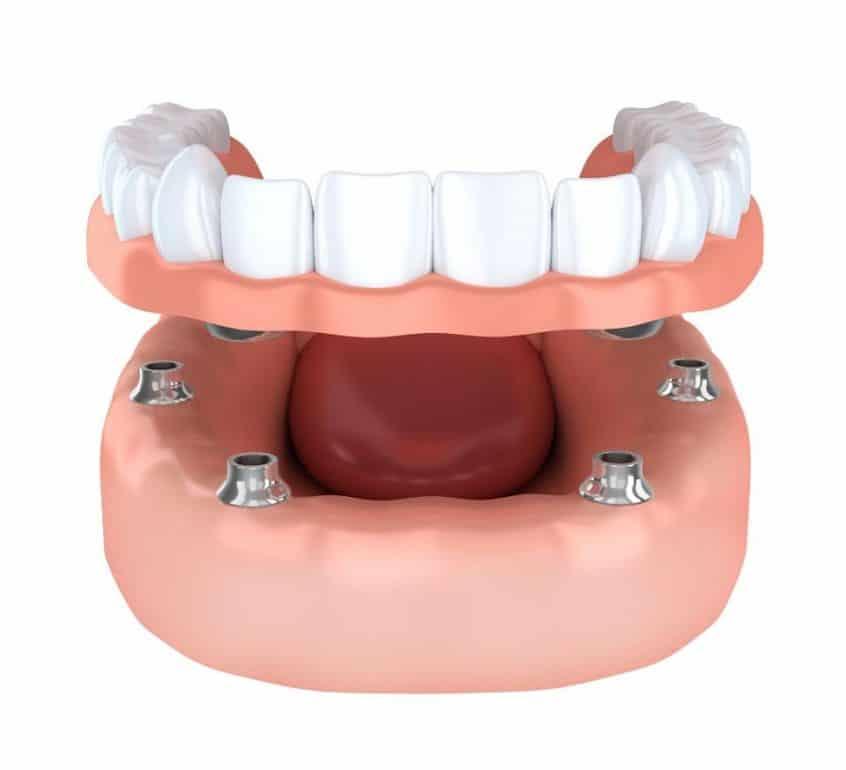Dental Implant Rendering
