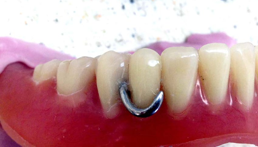 Metal Partial Denture
