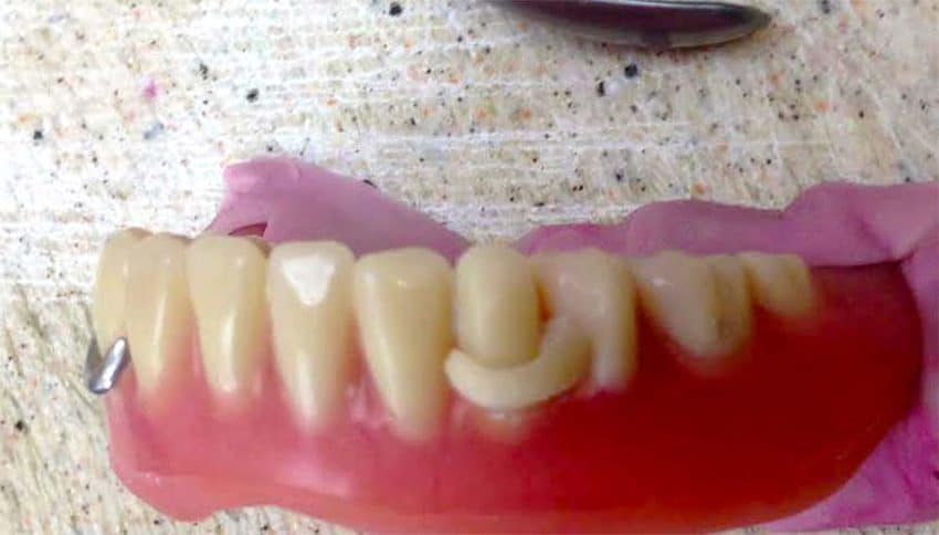 Nylon Partial Denture