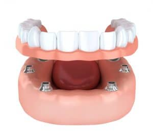 Luxury Dentures from Chinook Denture Clinic