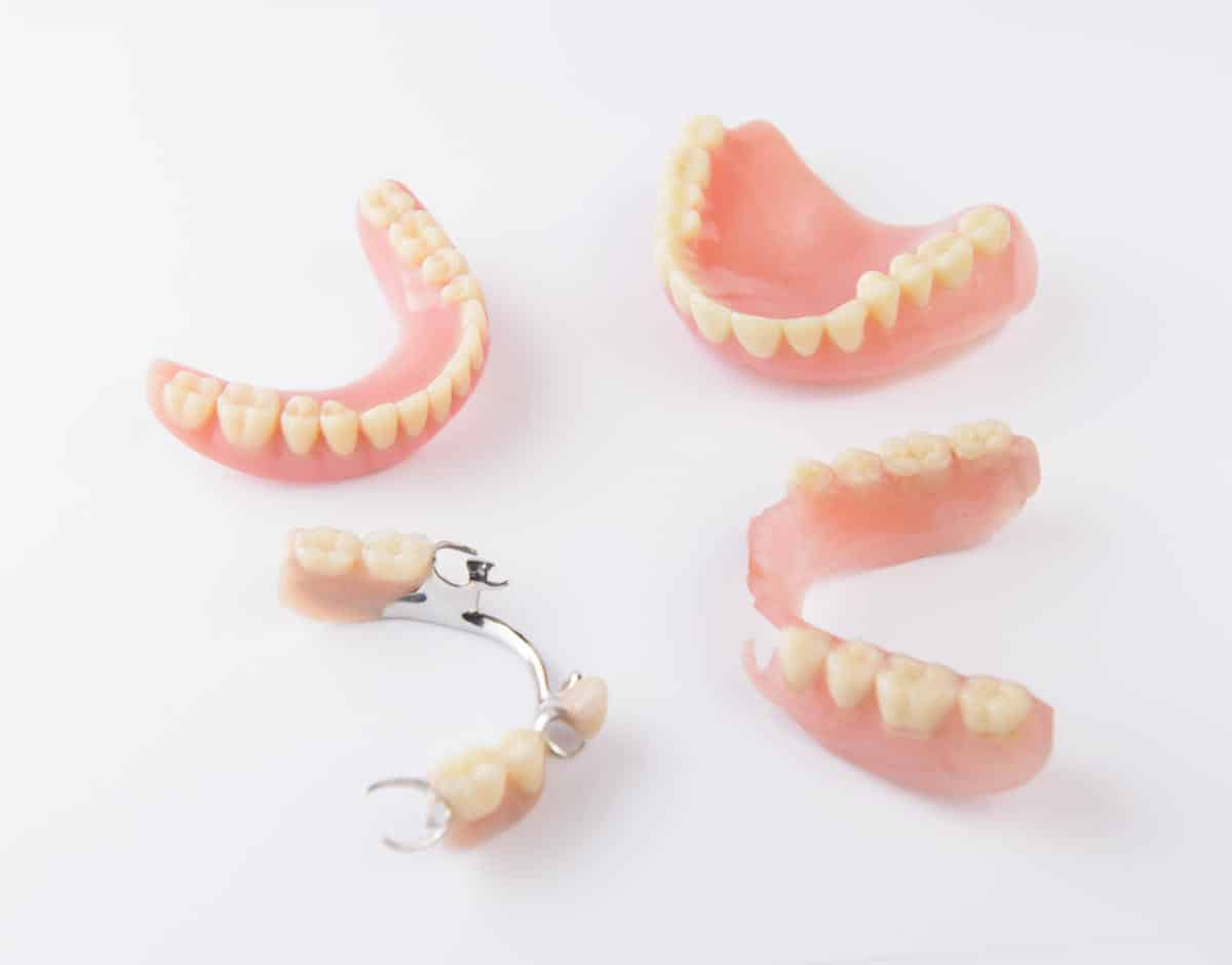 Dentures Vs. Bridges Vs. Partial Vs. Implants